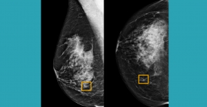 Google AI system could improve breast cancer detection: study