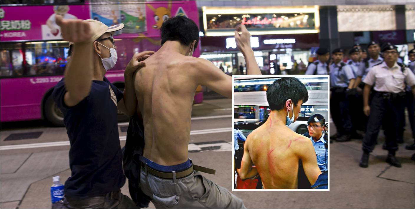 Leung (inset) shows injuries to his back. An unnamed man apparently attacks Leung in front of policemen. Photos: Reuters, Apple Daily
