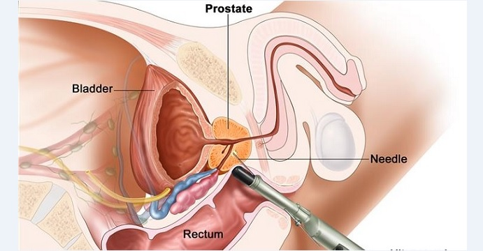 Diagnosis of prostate cancer involves an ultrasound probe via a patient's rectum for up-close examination of the prostate. Photo: National Cancer Institute